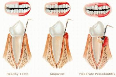 Is gingivitis contagious